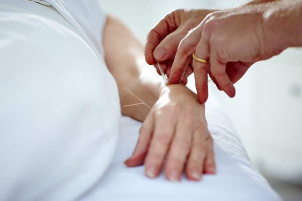 acupuncture for wrist and hand pain.