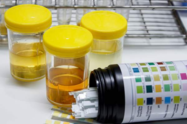 Urine sample with reagent strip for urinalysis.