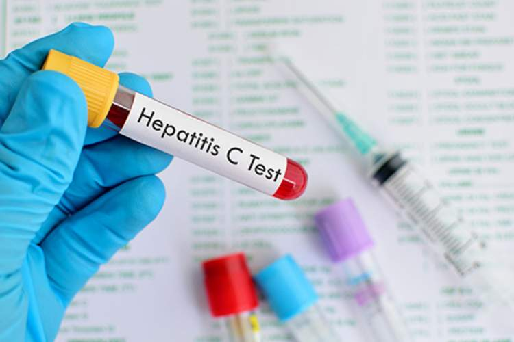Hepatitis C test blood vial