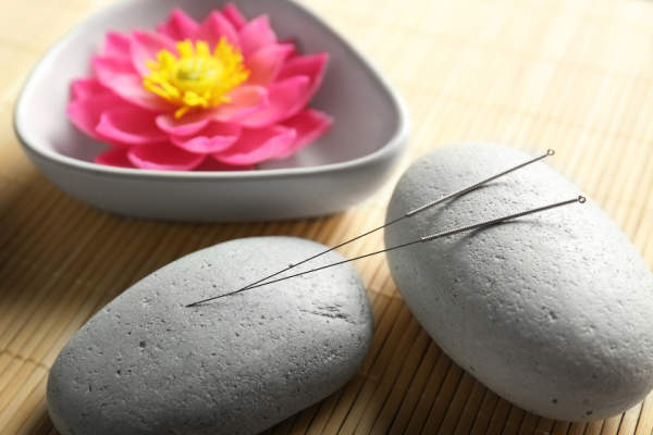 Lotus in stone bowl, acupuncture needles on stone.