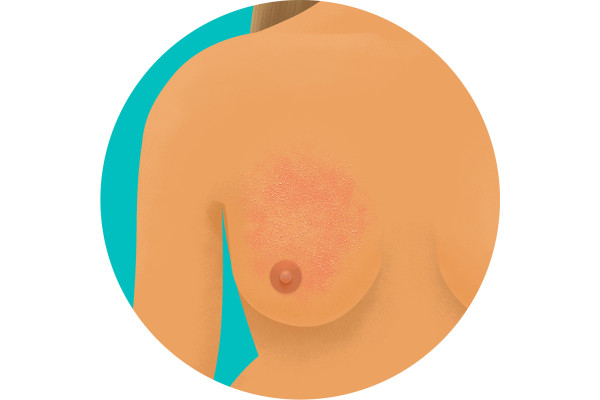 Illustration of orange peel appearance on breast