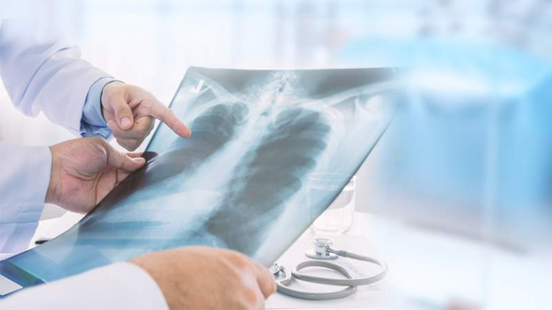 Doctors looking at lung x-ray.
