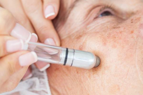 woman with age spots getting Microdermabrasion treatment
