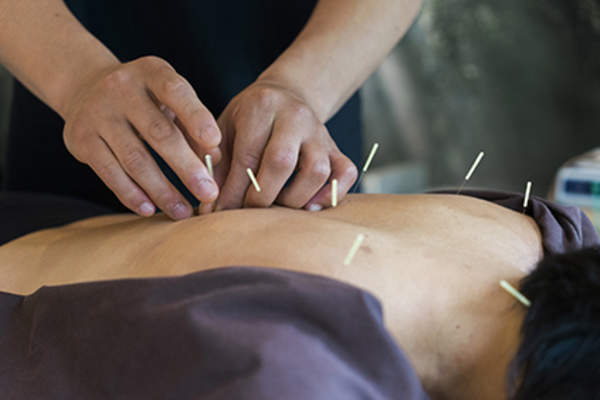 Acupuncture treatment to prevent a chronic hives flare-up.