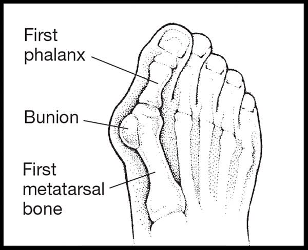 Bunion Art-Take Action to Banish Bunion Pain