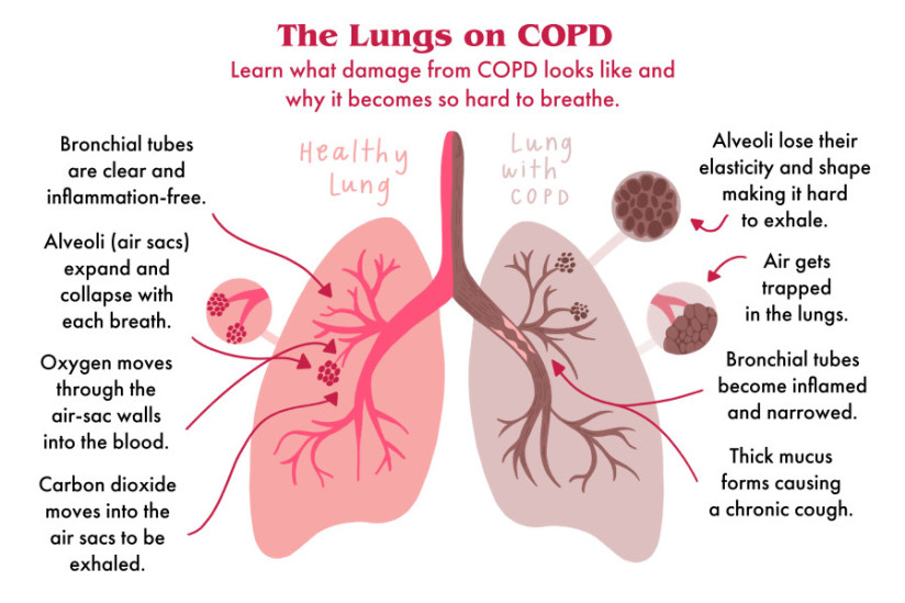 Lungs on COPD