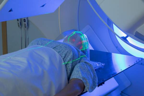 Woman receiving radiation therapy for brain cancer.