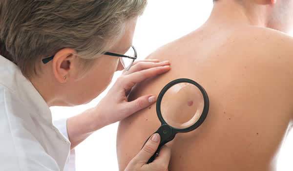 Doctor checking mole on man's back.