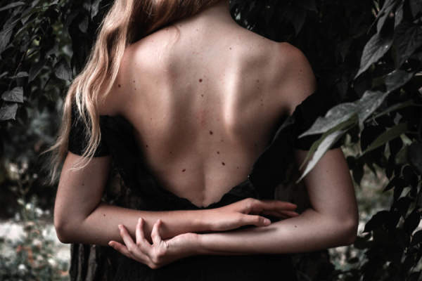 Young woman with moles on her back