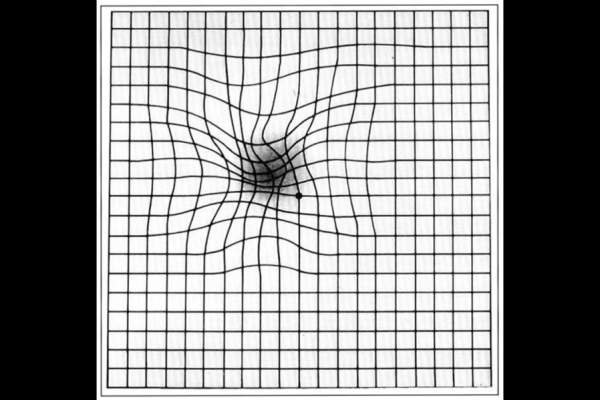 Amsler grid as it might appear to someone with age-related macular degeneration.