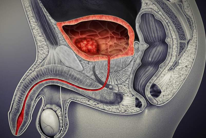 Bladder cancer medical illustration.