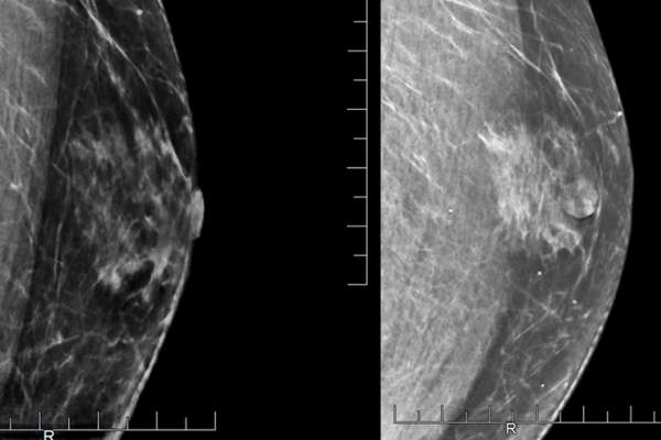Mammogram images showing a male patient's breast
