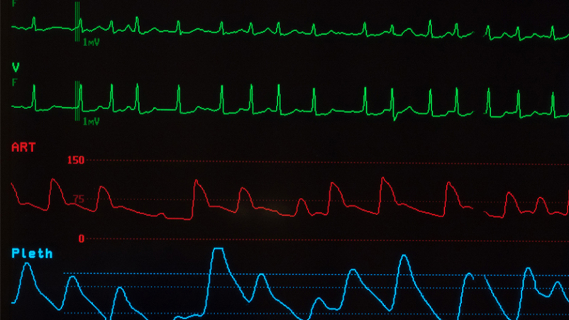 Heart monitor shows atrial fibrillation.