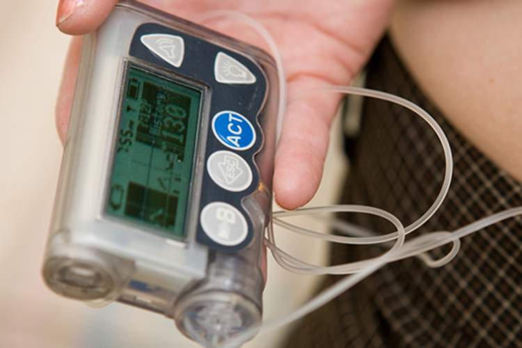 insulin pump image