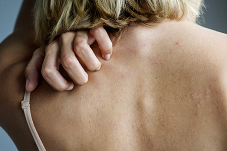Woman reaching behind to itch her back because of autoimmune hives.