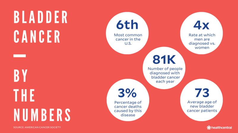 膀胱癌的数字,信息与普通,男性与妇女,结果。