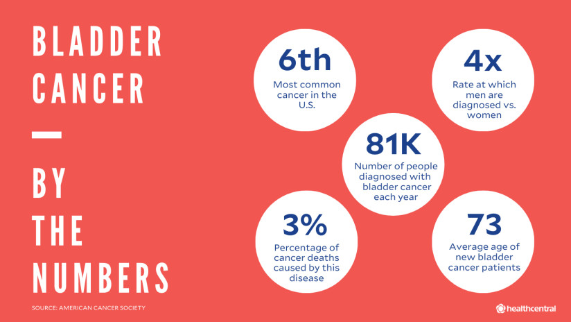 Bladder cancer by the numbers, info about how common, men vs. women, outcomes.