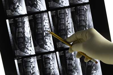CT images of the spine.