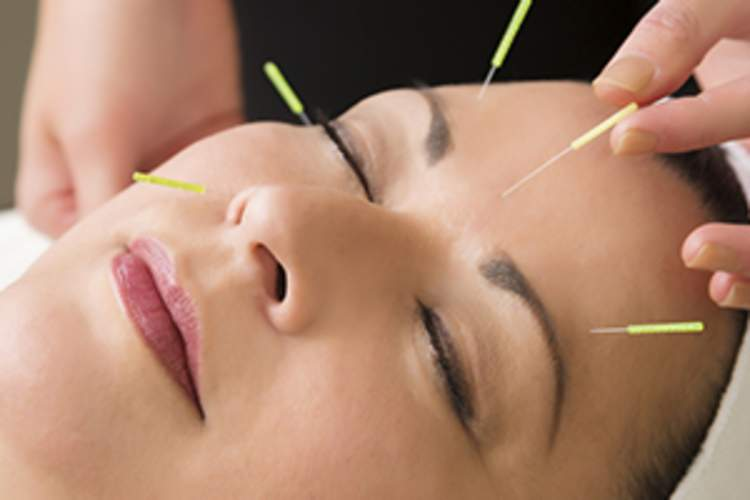 Mature woman getting acupuncture treatment at the spa