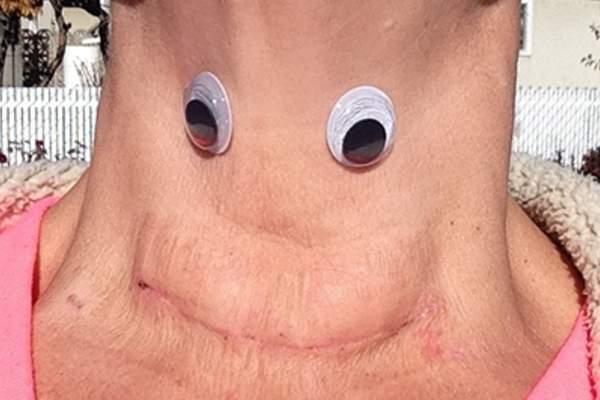 10 Ways To Rock Your Thyroid Scar