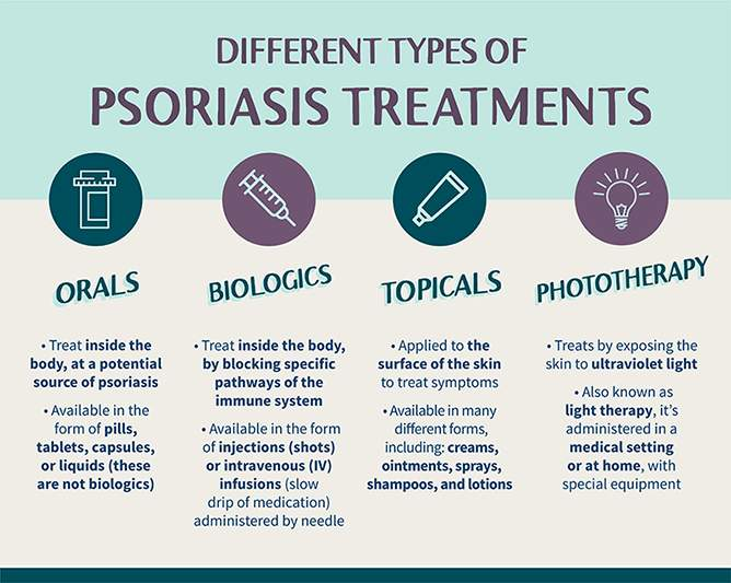 Different types of psoriasis treatments.