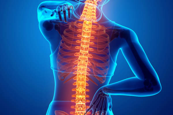 Spine and back pain concept.