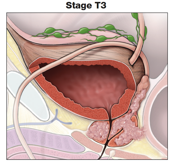 Making Sense of Prostate Cancer Tumor Stages-Stage T3-prostate
