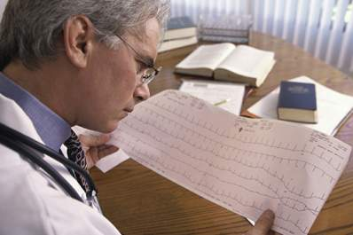 Doctor looking at ekg printout