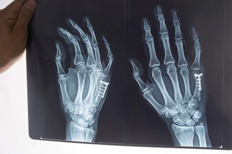 Hand bones in an X-ray.
