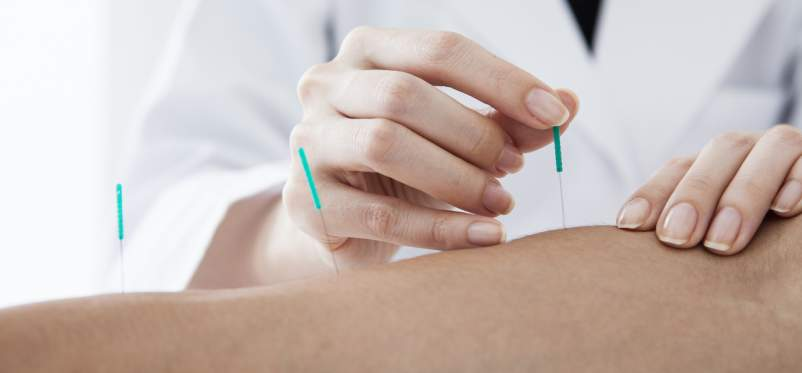 Acupuncture for Fibromyalgia