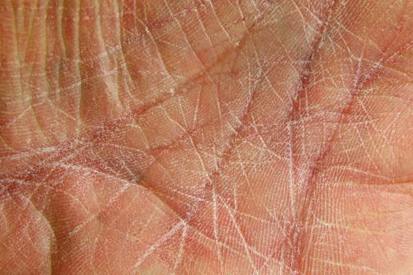 Dried skin on palm of hand.