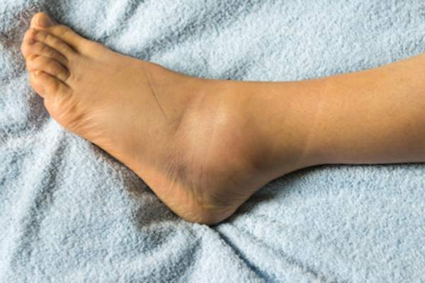 Swelling ankle.