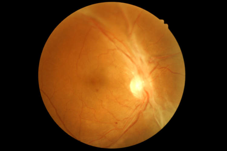 Retinal scan showing diabetic retinopathy