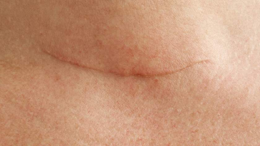 Thyroid Cancer Surgery Scar Revision And Management
