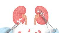 Why You Need to Protect Your Kidneys