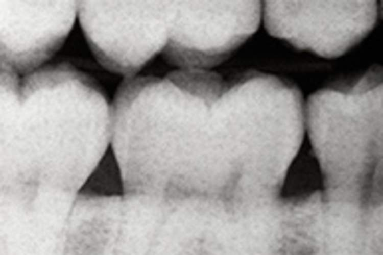 How Unhealthy Teeth Hurt Your Health