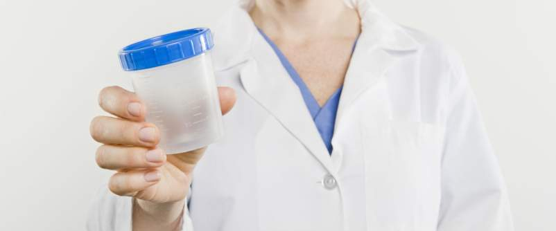 urine sample jar