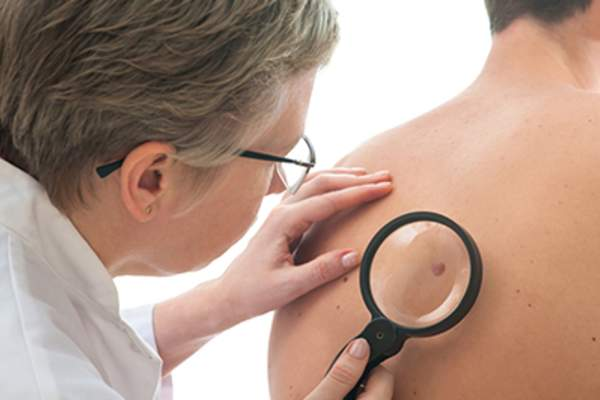 Dermatologist examining a mole on a man's back.