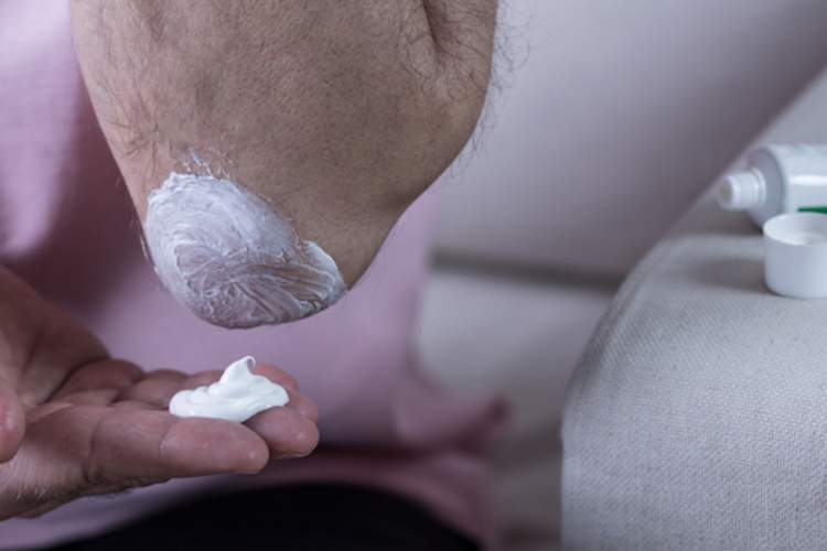 man rubbing on topical NSAID cream