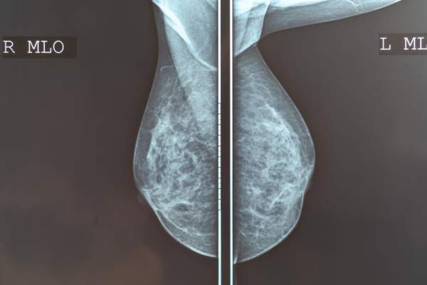 Mammography breast scan