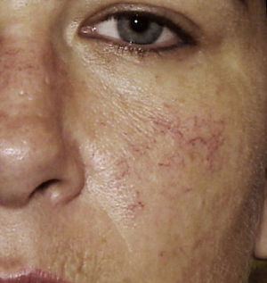 The Four Stages of Rosacea - Skin Care | HealthCentral