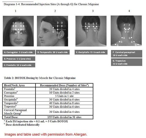 How Many Botox Injections For Chronic Migraine Migraine