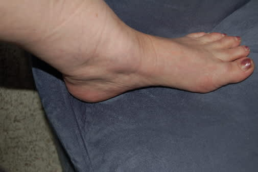 Ankle Swelling