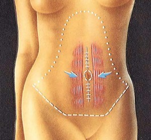 tummy tuck vertical sutures