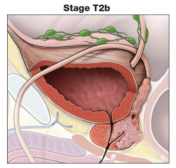 Making Sense of Prostate Cancer Tumor Stages-stage T2b-prostate