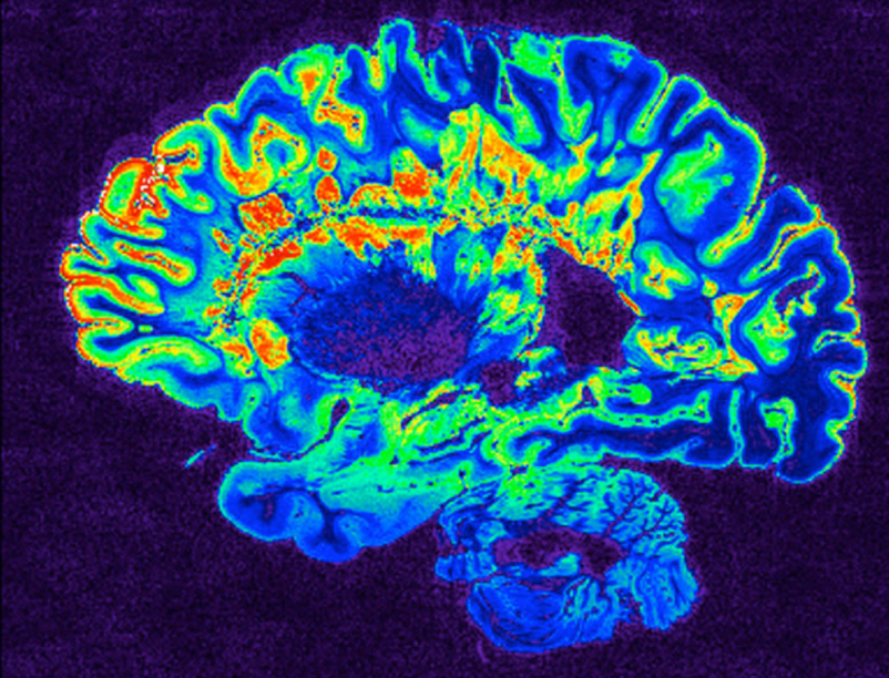 A pseudo-colored image of high-resolution gradient-echo MRI scan of a fixed cerebral hemisphere from a person with multiple sclerosis