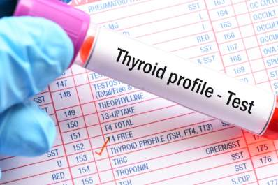 Thyroid blood profile.