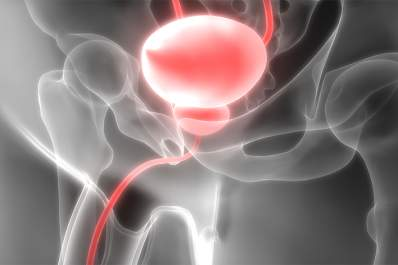 Image of the bladder.