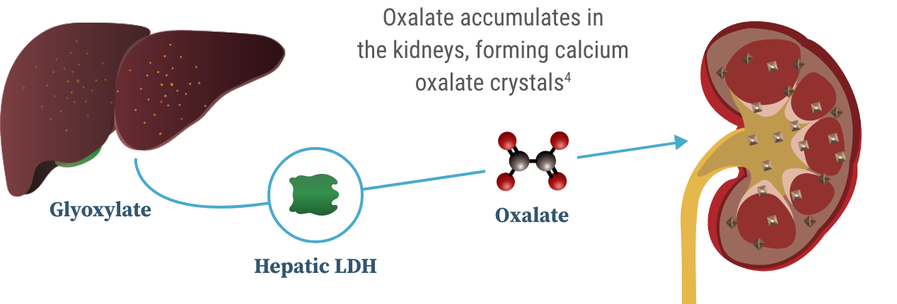 Graphic showing that hepatic LDH converts glyoxylate to oxalate, which then travels from the liver to the kidneys.