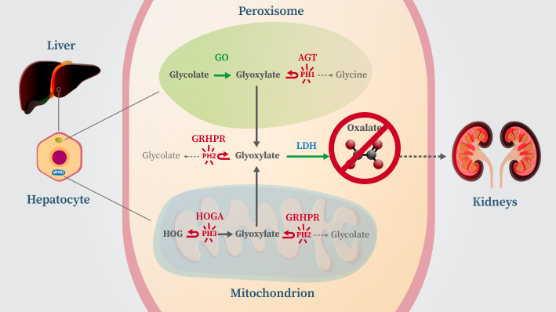 Graphic explaining how targeting of hepatic LDH can reduce oxalate in all known genetically defined subtypes of primary hyperoxaluria